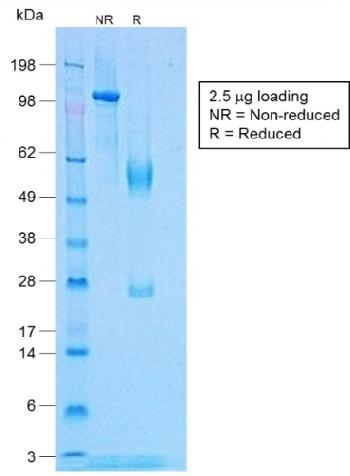 Fig. 3: SDS-PAGE Analysis Purified TNF alpha Rabbit Recombinant Monoclonal Antibody (TNF/1500R).
