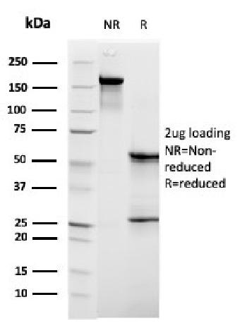 Fig. 2: SDS-PAGE Analysis Purified C1QB Mouse Monoclonal Antibody (C1QB/2961). Confirmation of Purity and Integrity of Antibody.