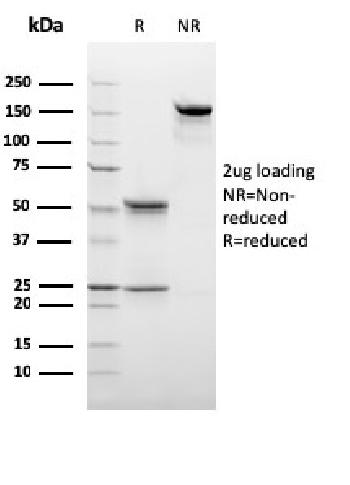 Fig. 3: SDS-PAGE Analysis Purified C1QB Mouse Monoclonal Antibody (C1QB/2966). Confirmation of Purity and Integrity of Antibody.