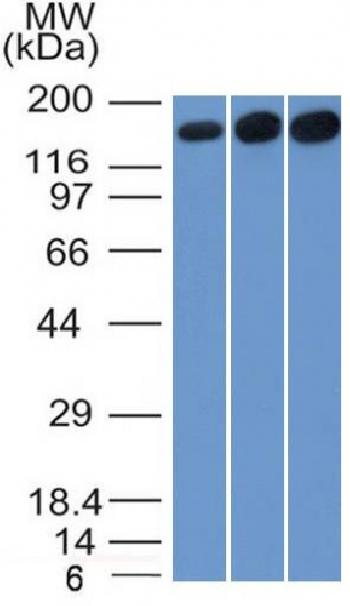 Anti-Topoisomerase II alpha (Proliferation & Drµg-Resistance Marker) Monoclonal Antibody(Clone: TOP2A/1361)