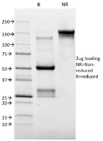 Anti-Topoisomerase II alpha (Proliferation & Drµg-Resistance Marker) Monoclonal Antibody(Clone: TOP2A/1362)