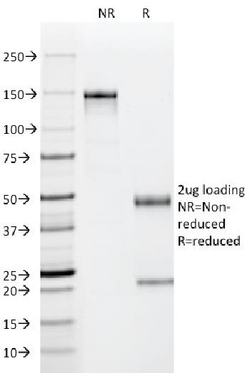 Fig. 1: SDS-PAGE Analysis Purified p53 Mouse Monoclonal Antibody (PAb122). Confirmation of Purity and Integrity of Antibody.