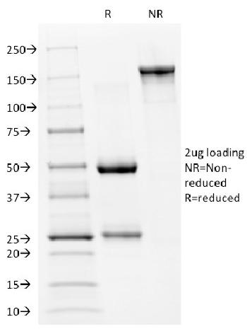Fig. 1: SDS-PAGE Analysis Purified p53 Mouse Monoclonal Antibody (PAb240). Confirmation of Integrity and Purity of Antibody.