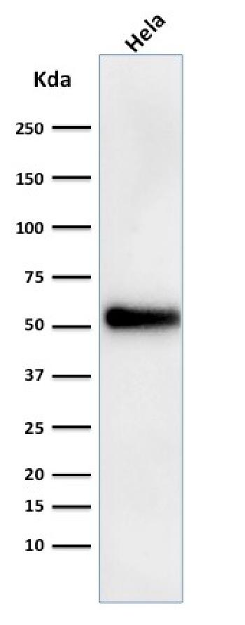 Anti-p53 Tumor Suppressor Protein Monoclonal Antibody(Clone: DO-1)