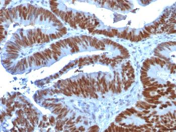 Fig. 1: Formalin-fixed, paraffin-embedded human Colon Carcinoma stained with p53 Mouse Monoclonal Antibody (TP53/1739).