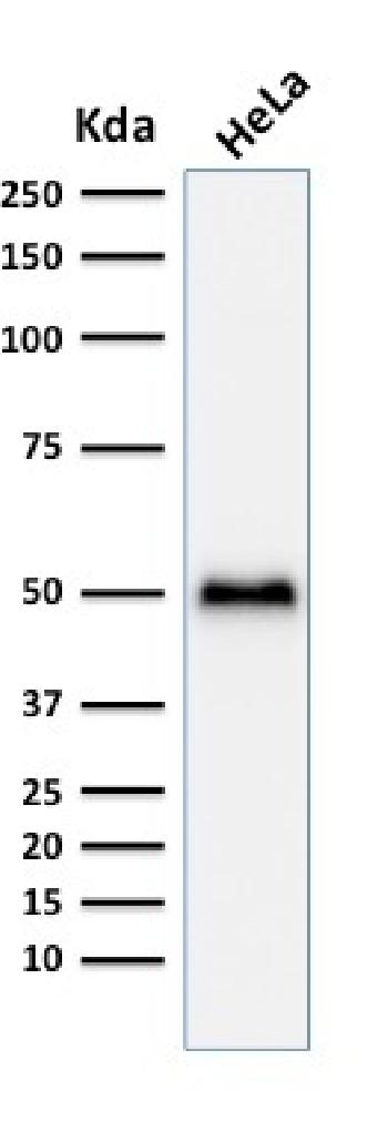 Anti-p53 Tumor Suppressor Protein Monoclonal Antibody(Clone: TP53/1799R)