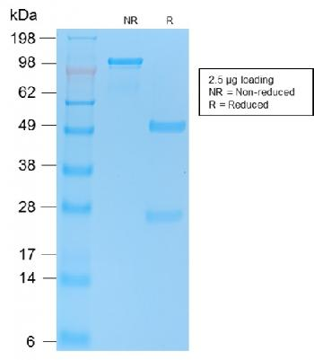 Fig. 3: SDS-PAGE Analysis Purified p53 Recombinant Rabbit Monoclonal Antibody (TP53/2092R). Confirmation of Purity and Integrity.