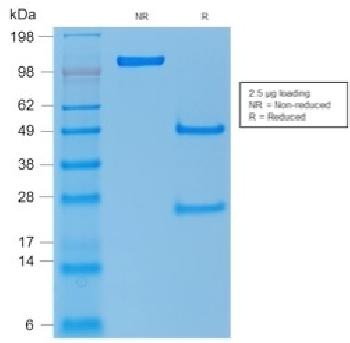 Fig. 2: SDS-PAGE Analysis Purified p53 Rabbit Polyclonal Antibody. Confirmation of Purity and Integrity of Antibody.