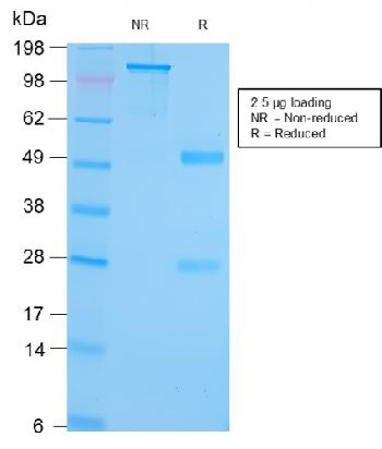 Fig. 1: SDS-PAGE Analysis Purified GRP94 Recombinant Rabbit Monoclonal (HSP90B1/3168R). Confirmation of Purity and Integrity of Antibody.
