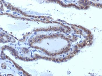 Fig. 1: Formalin-fixed, paraffin-embedded human Thyroid Carcinoma stained with TSHRA Monoclonal Antibody (SPM223).