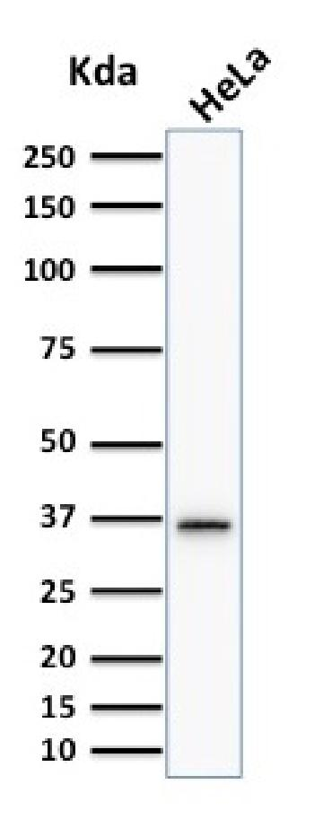 Anti-Thymidylate Synthase (5-FU Resistance Marker) Monoclonal Antibody(Clone: TYMS/1884)