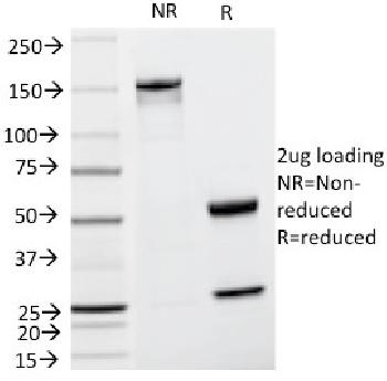 Fig. 1: SDS-PAGE Analysis Purified TYRP1 Mouse Monoclonal Antibody (TA99). Confirmation of Integrity and Purity of Antibody.