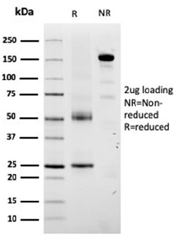 Fig. 2: SDS-PAGE Analysis Purified TYRP1-Monospecific Mouse Monoclonal Antibody (TYRP1/3280). Confirmation of Purity and Integrity of Antibody.
