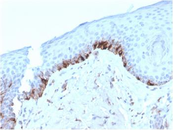 Fig. 1: Formalin-fixed, paraffin-embedded human Skin stained with TYRP1-Monospecific Mouse Monoclonal Antibody (TYRP1/3282).