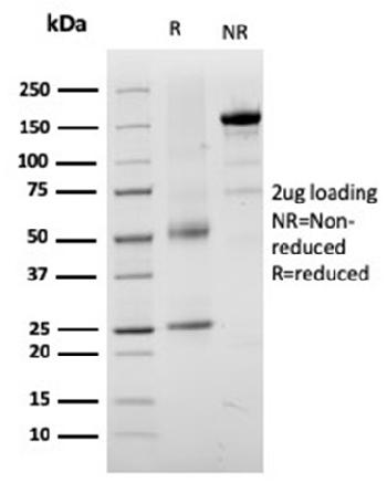 Fig. 2: SDS-PAGE Analysis Purified TYRP1-Monospecific Mouse Monoclonal Antibody (TYRP1/3282). Confirmation of Purity and Integrity of Antibody.