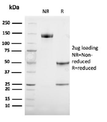 Fig. 2: SDS-PAGE Analysis Purified TYRP1-Monospecific Mouse Monoclonal Antibody (TYRP1/3284). Confirmation of Purity and Integrity of Antibody.
