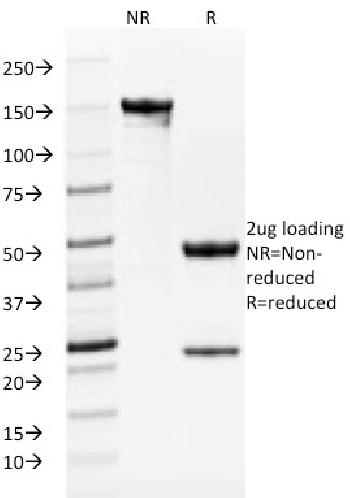 Fig. 2: SDS-PAGE Analysis Purified TYRP1-Monospecific Mouse Monoclonal Antibody (TYRP1/1986). Confirmation of Purity and Integrity of Antibody.