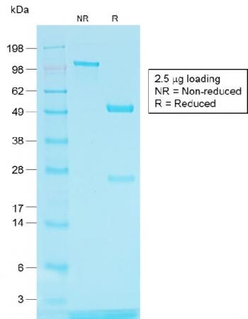 Fig. 2: SDS-PAGE Analysis of Purified TYRP1 Rabbit Recombinant Monoclonal Antibody (TYRP1/1564R)
