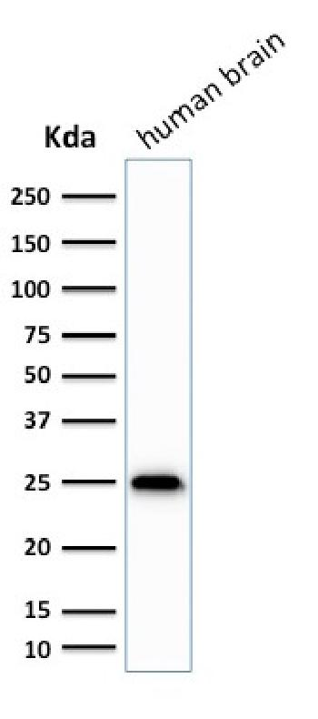 Fig. 1: Western Blot Analysis of human brain tissue lysate using PGP9.5 / UchL1 Mouse Monoclonal Antibody (SPM575)