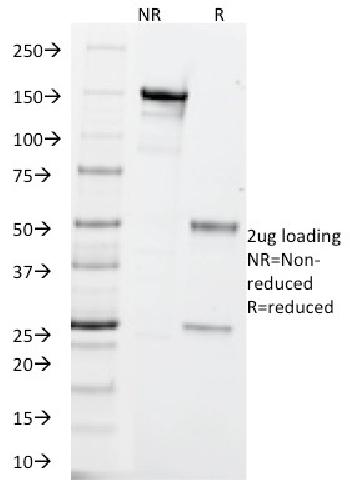 Fig. 2: SDS-PAGE Analysis Purified PGP9.5 / UchL1 Mouse Monoclonal Antibody (SPM575). Confirmation of Integrity and Purity of Antibody.