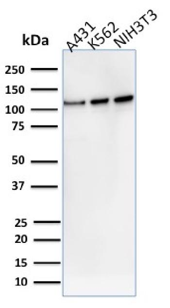 Anti-Vinculin (Marker of Age-related Macular Degeneration) Monoclonal Antibody(Clone: VCL/2575)
