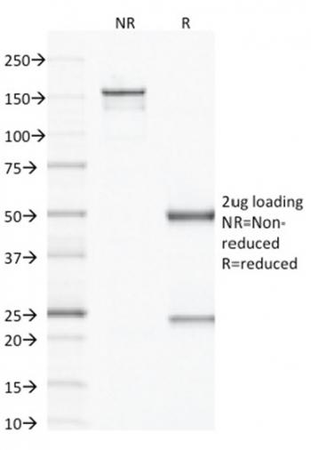 Fig. 2: SDS-PAGE Analysis Purified VEGF Mouse Monoclonal Antibody (VG1). Confirmation of Integrity and Purity of Antibody.