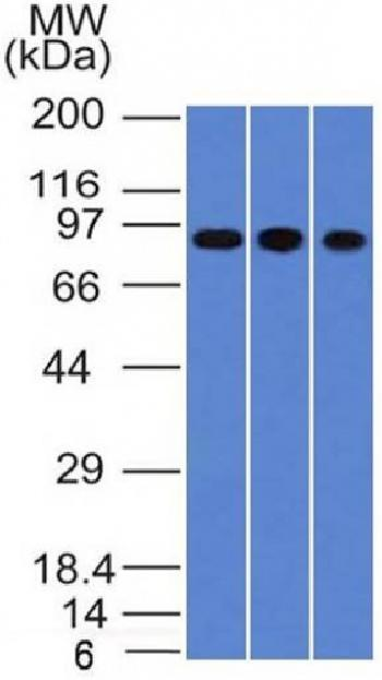 Fig. 1: Western Blot of A549, HepG2 & HCT116 cell lysates with Villin Monoclonal Antibody (VIL1/1314).