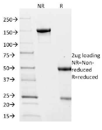 Fig. 2: SDS-PAGE Analysis Purified Villin Mouse Monoclonal Antibody (VIL1/2376). Confirmation of Integrity and Purity of Antibody.