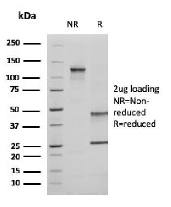 Fig. 3: SDS-PAGE Analysis Purified Ezrin Mouse Monoclonal Antibody (CPTC-Ezrin-1). Confirmation of Purity and Integrity of Antibody