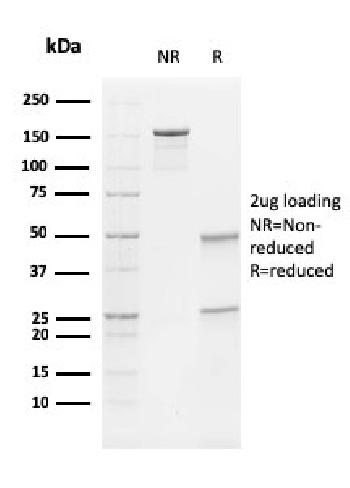 Fig. 2: SDS-PAGE Analysis Purified Vimentin Mouse Monoclonal Antibody (V9). Confirmation of Integrity and Purity of Antibody.