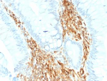 Fig. 2: Formalin-fixed, paraffin-embedded human Colon Carcinoma stained with Vimentin Rabbit Recombinant Monoclonal Antibody (VIM/1937R).