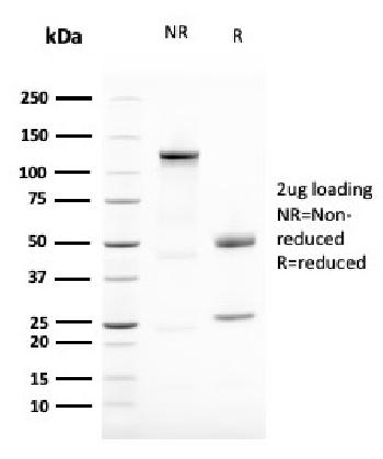 Fig. 4: SDS-PAGE Analysis Purified Vimentin Mouse Monoclonal Antibody (VIM/1937R). Confirmation of Purity and Integrity of Antibody.