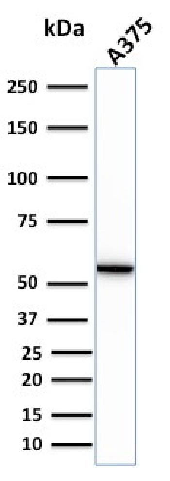 Fig. 5: Western Blot Analysis of human A375 cell lysate using Vimentin Rabbit Recombinant Monoclonal Antibody (VIM/1937R).