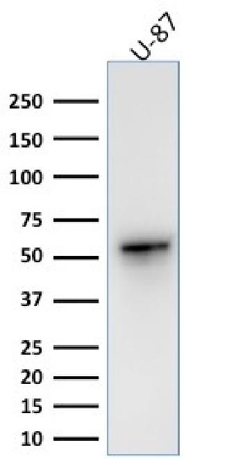 Fig. 6: Western Blot Analysis of human U-87 cell lysate using Vimentin Rabbit Recombinant Monoclonal Antibody (VIM/1937R).