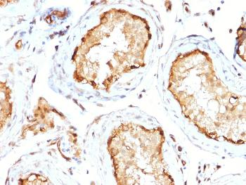 Fig. 1: Formalin-fixed, paraffin-embedded human Testis stained with 14-3-3E Mouse Monoclonal Antibody (CPTC-YWHAE-1).