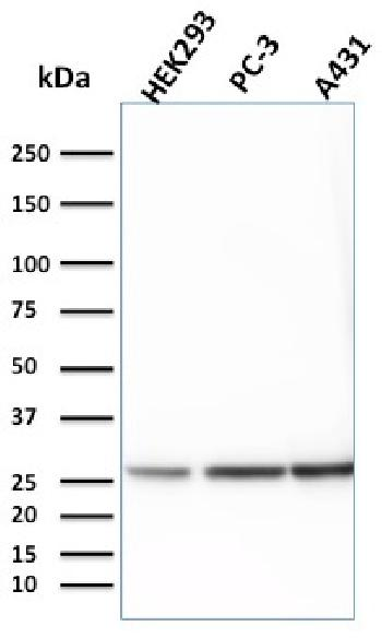 Fig. 2: Western Blot Analysis of HEK293, PC-3 and A431 cell lysates using 14-3-3E Mouse Monoclonal Antibody (CPTC-YWHAE-1).