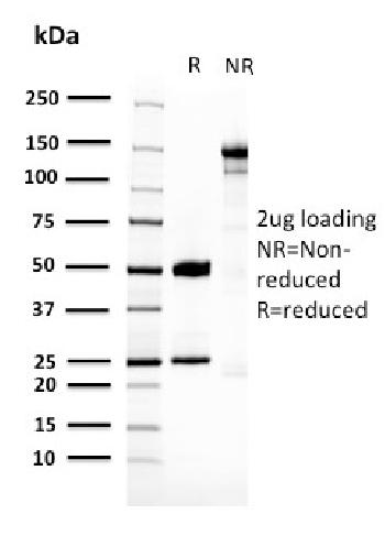 Fig. 3: SDS-PAGE Analysis Purified 14-3-3E Mouse Monoclonal Antibody (CPTC-YWHAE-1). Confirmation of Purity and Integrity of Antibody