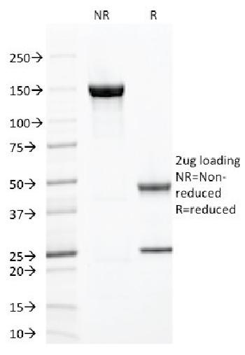 Anti-ZAP70 (Chronic Lymphocytic Leukemia Marker) Monoclonal Antibody(Clone: ZAP70/2047)