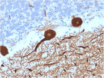 Fig. 4: Formalin-fixed, paraffin-embedded human Cerebellum stained with CA8 Mouse Monoclonal Antibody (CPTC-CA8-2).