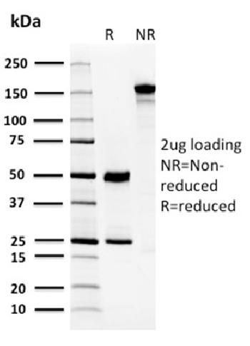 Fig. 5: SDS-PAGE Analysis Purified CA8 Mouse Monoclonal Antibody (CPTC-CA8-2). Confirmation of Purity and Integrity of Antibody