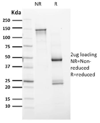 Fig. 4: Purified PAX8 Mouse Monoclonal Antibody (PAX8/1491). Confirmation of Integrity and Purity of Antibody.