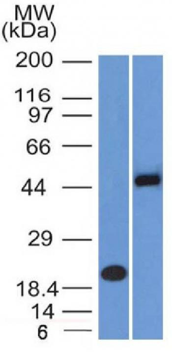 Anti-PAX8 (Renal Cell Marker) Monoclonal Antibody(Clone: PAX8/1492)