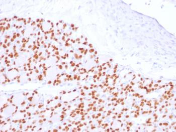 Fig. 3: Formalin-fixed, paraffin-embedded human Thyroid stained with PAX8 Recombinant Rabbit Monoclonal Antibody (PAX8/2774R).