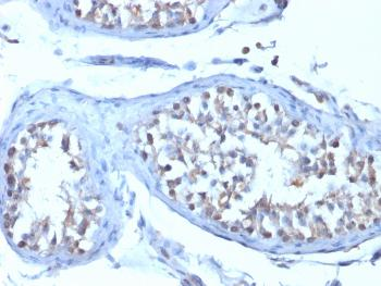 Fig. 3: Formalin-fixed, paraffin-embedded human Testicular Carcinoma stained with B7-H4 Mouse Monoclonal Antibody (B7H4/1788).