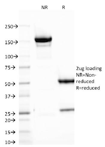 Fig. 4: SDS-PAGE Analysis Purified B7-H4 Mouse Monoclonal Antibody (B7H4/1788).