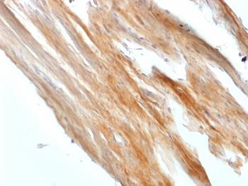 Fig. 2: Formalin-fixed, paraffin-embedded Rat Uterus stained with Caldesmon Rabbit Recombinant Monoclonal Antibody (CALD1/1424R).