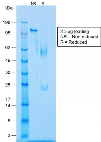 Fig. 3: SDS-PAGE Analysis Purified Caldesmon Rabbit Recombinant Monoclonal Antibody (CALD1/1424R). Confirmation of Integrity and Purity of Antibody.