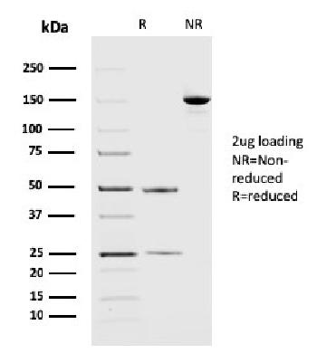 Fig. 4: SDS-PAGE Analysis Purified PD-L2 Mouse Monoclonal Antibody (PDL2/2676). Confirmation of Purity and Integrity of Antibody.