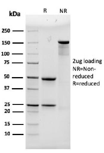Fig. 1: SDS-PAGE Analysis Purified ACTN4 Mouse Monoclonal Antibody (93). Confirmation of Purity and Integrity of Antibody.