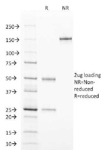 Fig. 3: SDS-PAGE Analysis Purified TCL1 Mouse Monoclonal Antibody (TCL1/2078). Confirmation of Purity and Integrity of Antibody.